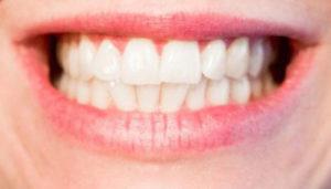 Pozitívne účinky na zuby